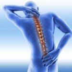 I sintomi dell'osteoporosi