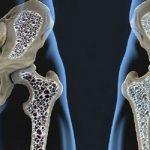 cura-riabilitazione-osteoporosi_800x446