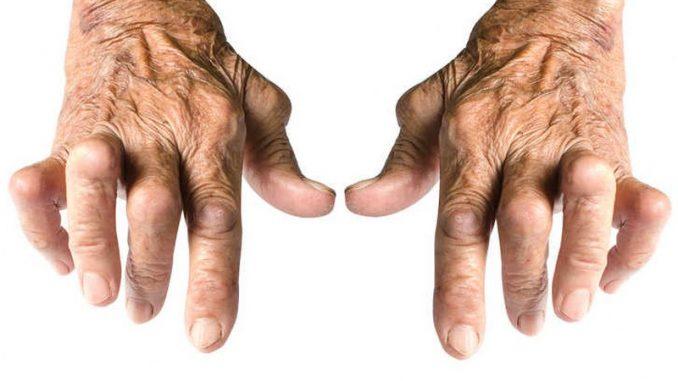 artrite-reumatoide_