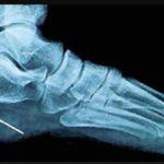 Come si forma la spina calcaneare: cause, sintomi, cure, Fisioterapia